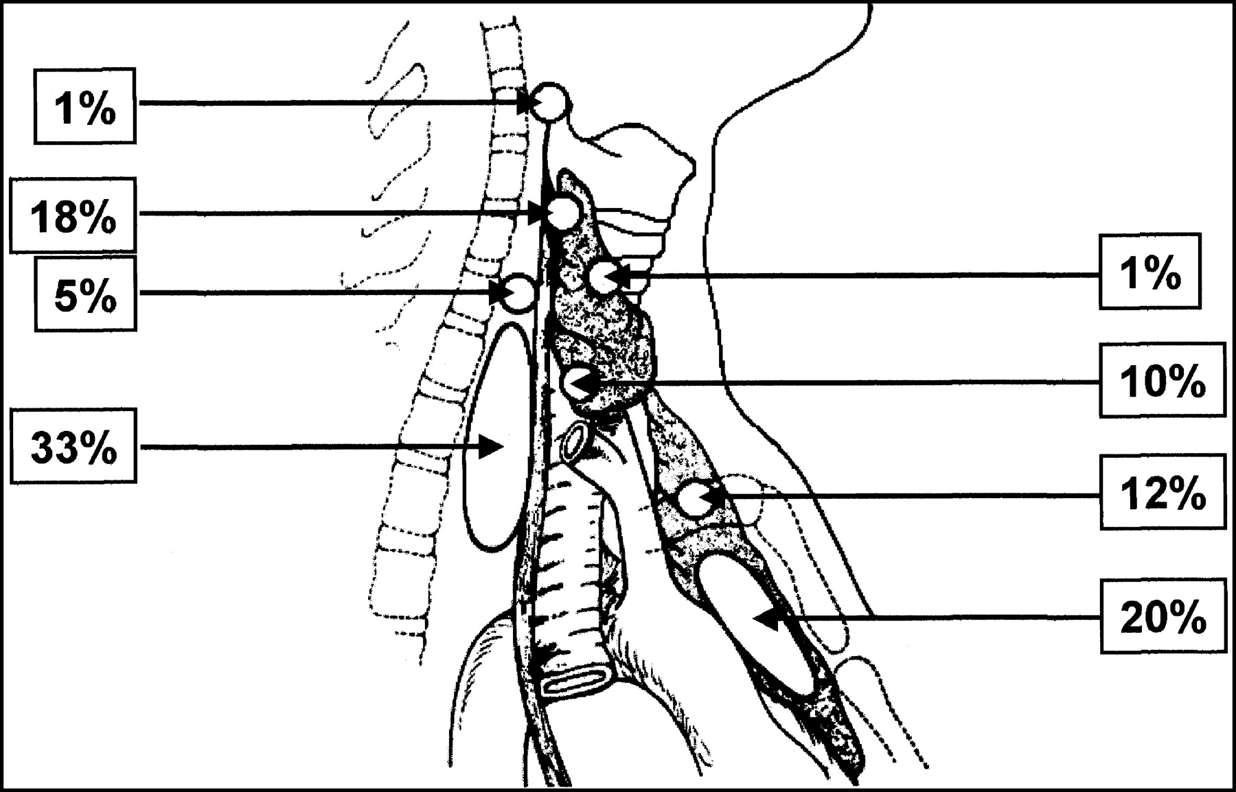 Preoperative Localization And Radioguided Parathyroid Surgery