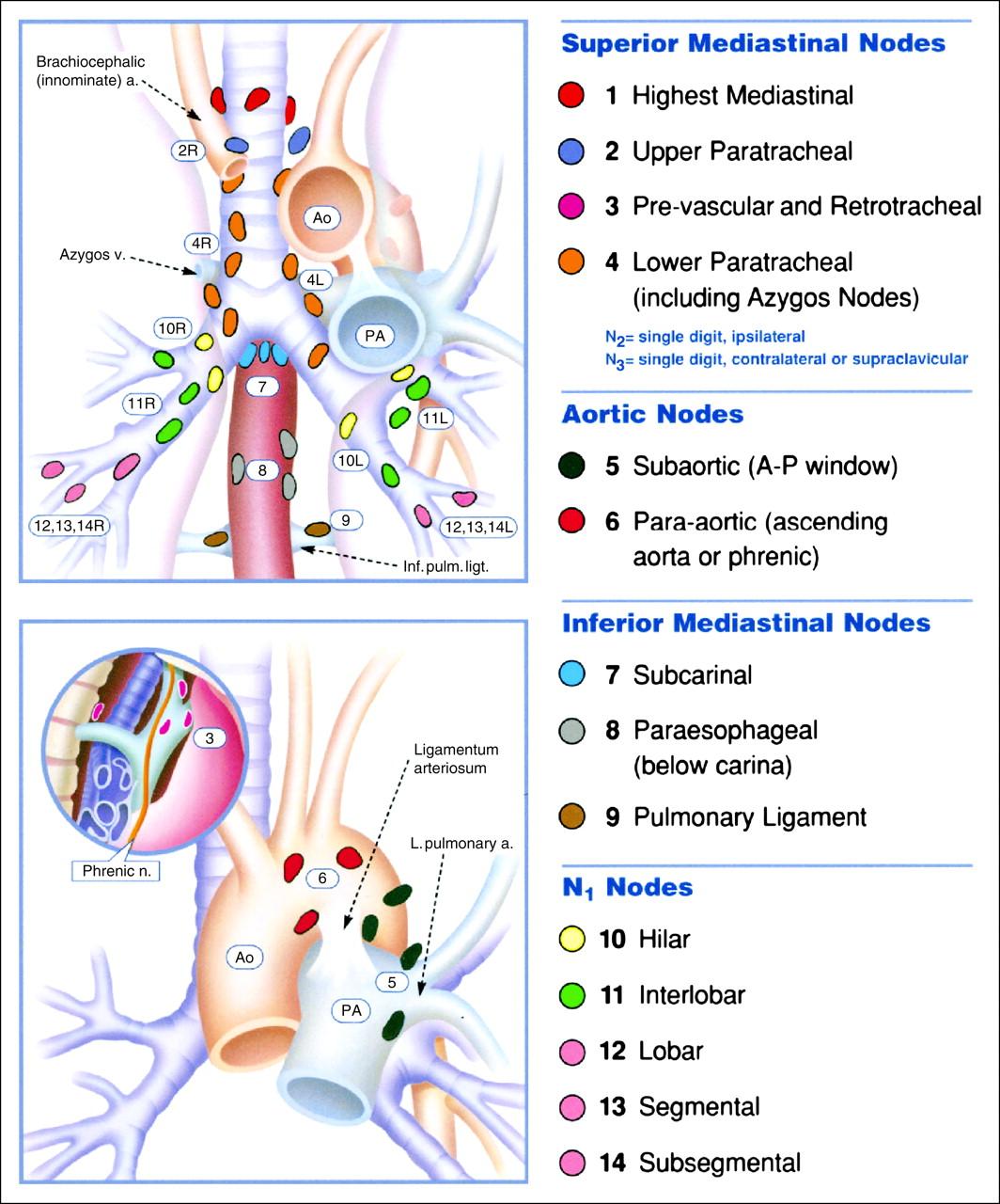 Mediastinal Lymph Nodes Choice Image The Anatomy Of Creatures