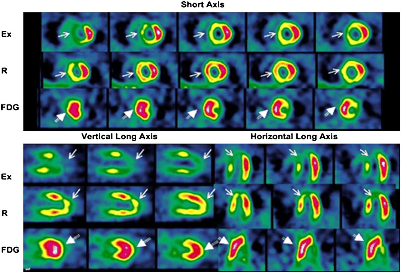 Nuclear Cardiac Stress Testing In The Era Of Molecular Medicine