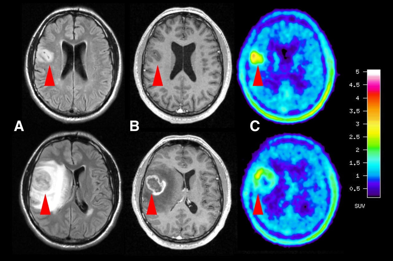 Pet Scan Brain