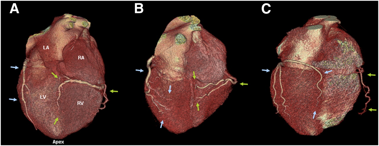 Definition of Vascular Territories on Myocardial Perfusion Images by ...