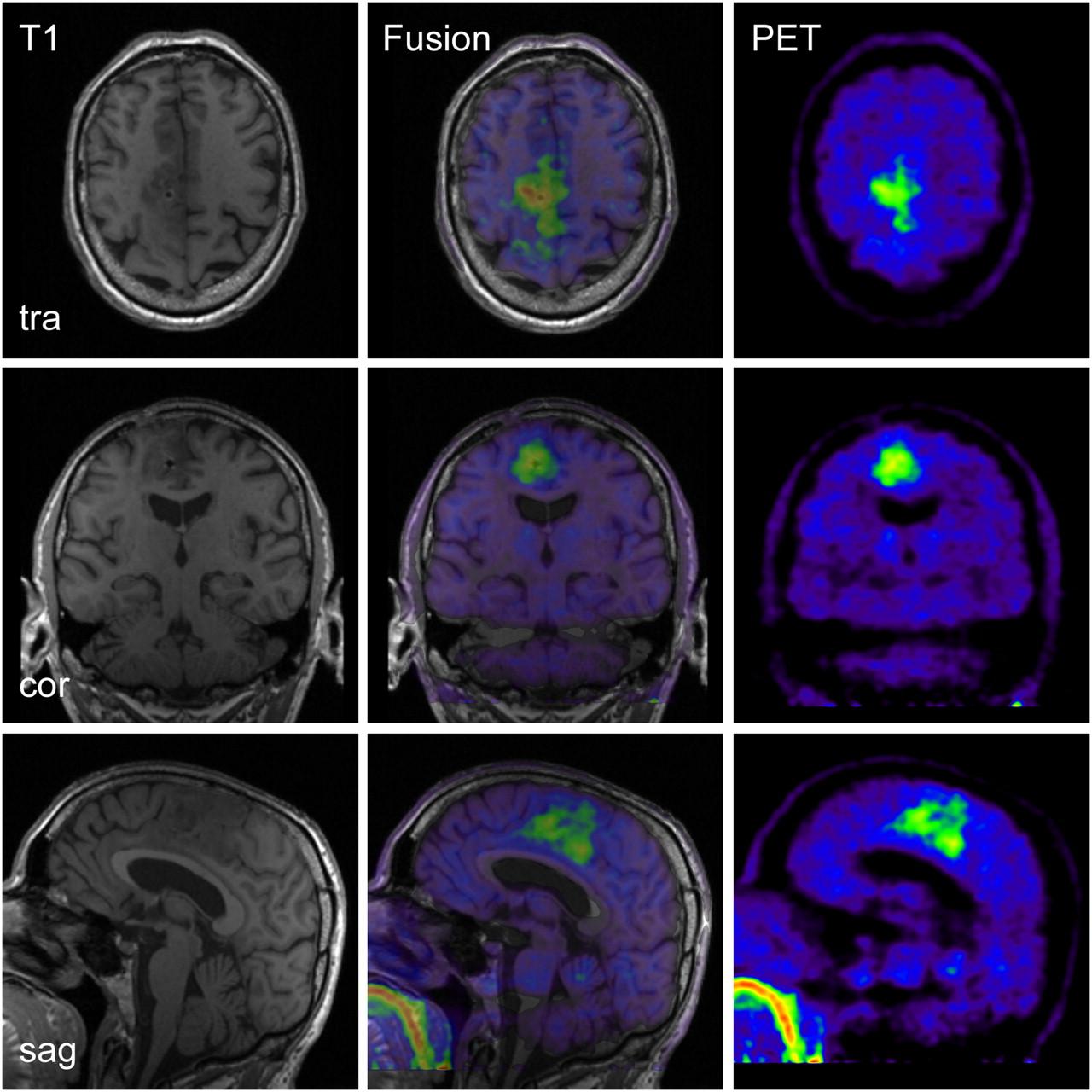 Hybrid PET/MRI of Intracranial Masses: Initial Experiences