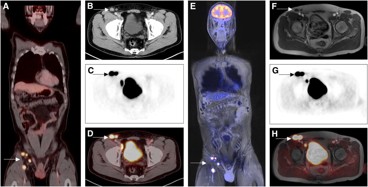 Stage 3 Malignant Melanoma Prognosis