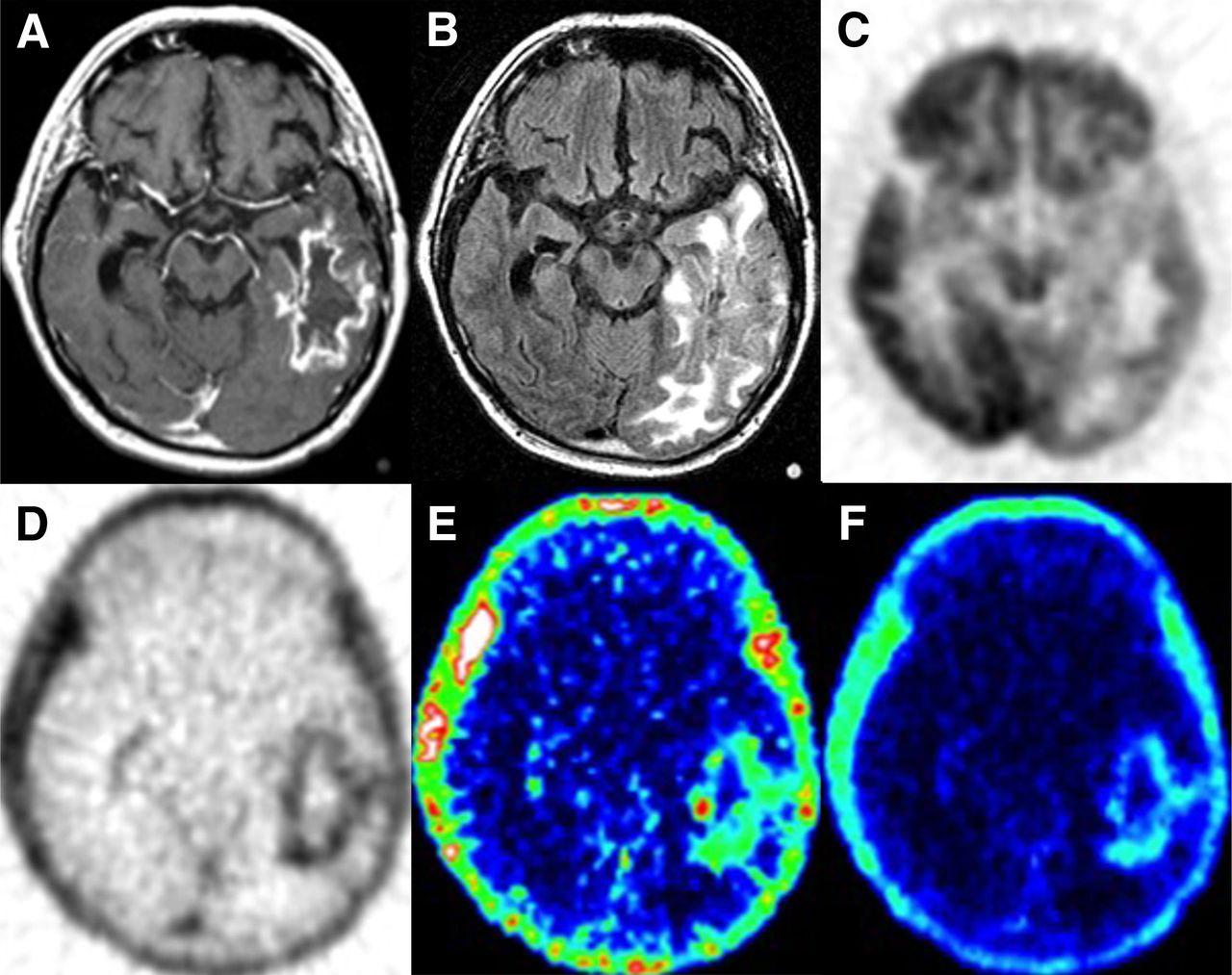 Multimodality Brain Tumor Imaging: MR Imaging, PET, and PET