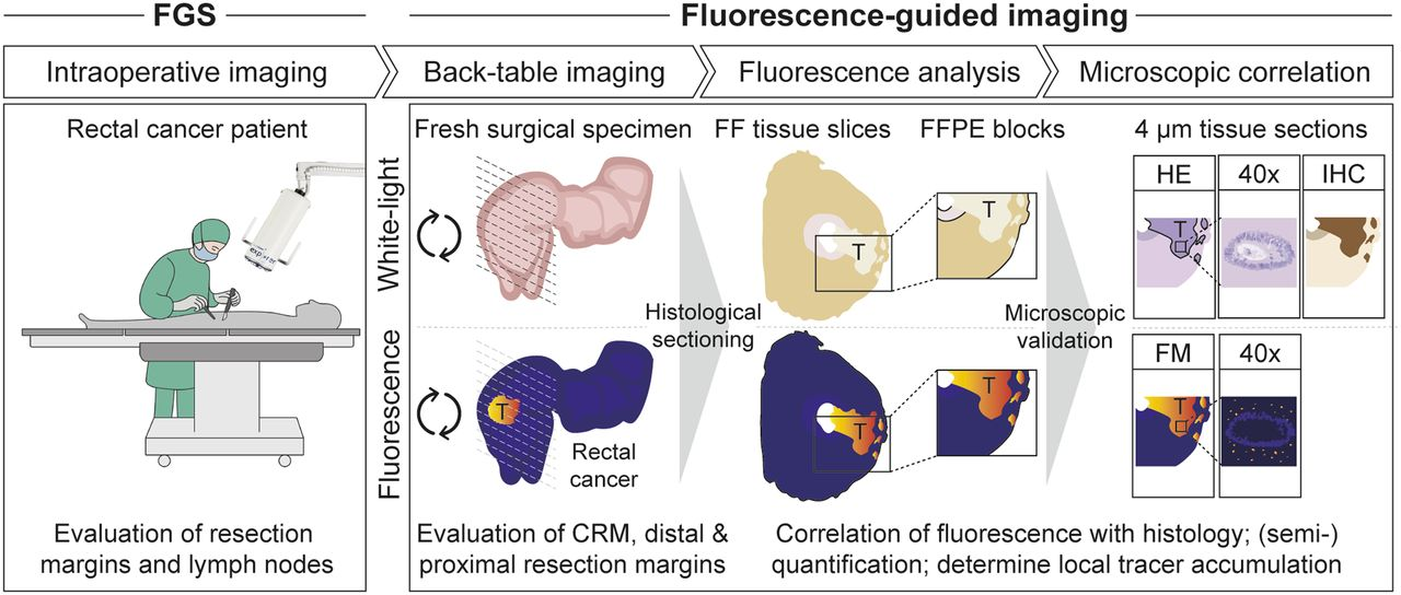 Back Table Fluorescence Guided Imaging For Circumferential Resection Margin Evaluation Using Bevacizumab 800cw In Patients With Locally Advanced Rectal Cancer