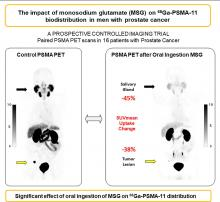 The Impact of Monosodium Glutamate on <sup>68</sup>Ga-PSMA-11 Biodistribution in Men with Prostate Cancer: A Prospective Randomized, Controlled Imaging Study