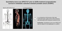 The Prognostic Value of Quantitative Bone SPECT/CT Before <sup>223</sup>Ra Treatment in Metastatic Castration-Resistant Prostate Cancer