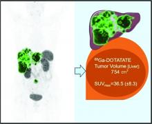Quantitative <sup>68</sup>Ga-DOTATATE PET/CT Parameters for the Prediction of Therapy Response in Patients with Progressive Metastatic Neuroendocrine Tumors Treated with <sup>177</sup>Lu-DOTATATE