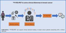 Value of <sup>18</sup>F-FES PET in Solving Clinical Dilemmas in Breast Cancer Patients: A Retrospective Study