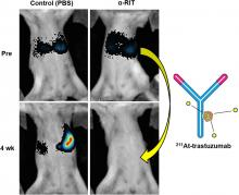 Utility of <sup>211</sup>At-Trastuzumab for the Treatment of Metastatic Gastric Cancer in the Liver: Evaluation of a Preclinical α-Radioimmunotherapy Approach in a Clinically Relevant Mouse Model