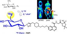 Targeting Fibroblast Activation Protein: Radiosynthesis and Preclinical Evaluation of an <sup>18</sup>F-Labeled FAP Inhibitor