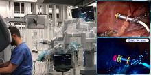 Optical Navigation of the Drop-In γ-Probe as a Means to Strengthen the Connection Between Robot-Assisted and Radioguided Surgery