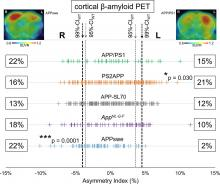 Asymmetry of Fibrillar Plaque Burden in Amyloid Mouse Models