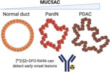 Exploiting the MUC5AC Antigen for Noninvasive Identification of Pancreatic Cancer