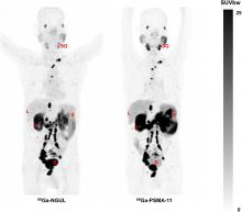 Head-to-Head Comparison of <sup>68</sup>Ga-NOTA (<sup>68</sup>Ga-NGUL) and <sup>68</sup>Ga-PSMA-11 in Patients with Metastatic Prostate Cancer: A Prospective Study