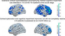 Slow but Evident Recovery from Neocortical Dysfunction and Cognitive Impairment in a Series of Chronic COVID-19 Patients