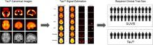 Tau<sup>IQ</sup>: A Canonical Image Based Algorithm to Quantify Tau PET Scans