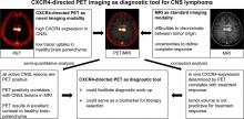 CXCR4-Targeted PET Imaging of Central Nervous System B-Cell Lymphoma