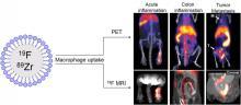 Metallofluorocarbon Nanoemulsion for Inflammatory Macrophage Detection via PET and MRI