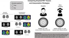 Toward a Universal Readout for <sup>18</sup>F-Labeled Amyloid Tracers: The CAPTAINs Study
