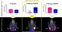 Identification of a PET Radiotracer for Imaging of the Folate Receptor-α: A Potential Tool to Select Patients for Targeted Tumor Therapy