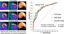 Simulation of Low-Dose Protocols for Myocardial Perfusion <sup>82</sup>Rb Imaging