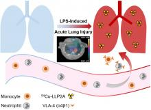 Molecular Imaging of Very Late Antigen-4 in Acute Lung Injury