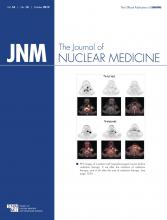 Journal of Nuclear Medicine: 53 (10)