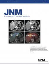 Journal of Nuclear Medicine: 53 (4)