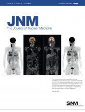 Journal of Nuclear Medicine: 53 (6)
