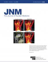 Journal of Nuclear Medicine: 53 (8)