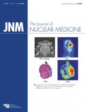 Journal of Nuclear Medicine: 54 (1)