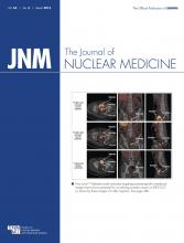 Journal of Nuclear Medicine: 54 (3)