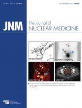 Journal of Nuclear Medicine: 54 (4)