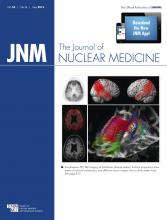 Journal of Nuclear Medicine: 54 (5)
