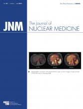 Journal of Nuclear Medicine: 54 (6)