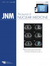 Journal of Nuclear Medicine: 54 (9)