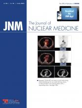 Journal of Nuclear Medicine: 55 (10)