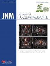 Journal of Nuclear Medicine: 55 (11)