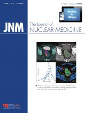 Journal of Nuclear Medicine: 55 (3)
