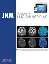 Journal of Nuclear Medicine: 55 (4)