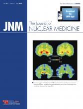 Journal of Nuclear Medicine: 55 (5)
