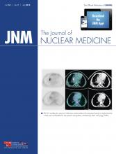 Journal of Nuclear Medicine: 55 (7)