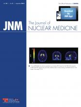 Journal of Nuclear Medicine: 55 (9)