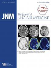 Journal of Nuclear Medicine: 56 (10)