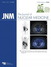 Journal of Nuclear Medicine: 56 (3)