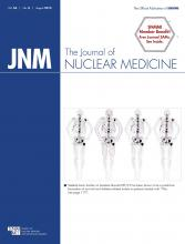 Journal of Nuclear Medicine: 56 (8)