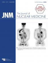 Journal of Nuclear Medicine: 56 (9)