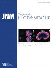 Journal of Nuclear Medicine: 57 (10)