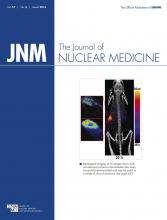 Journal of Nuclear Medicine: 57 (3)